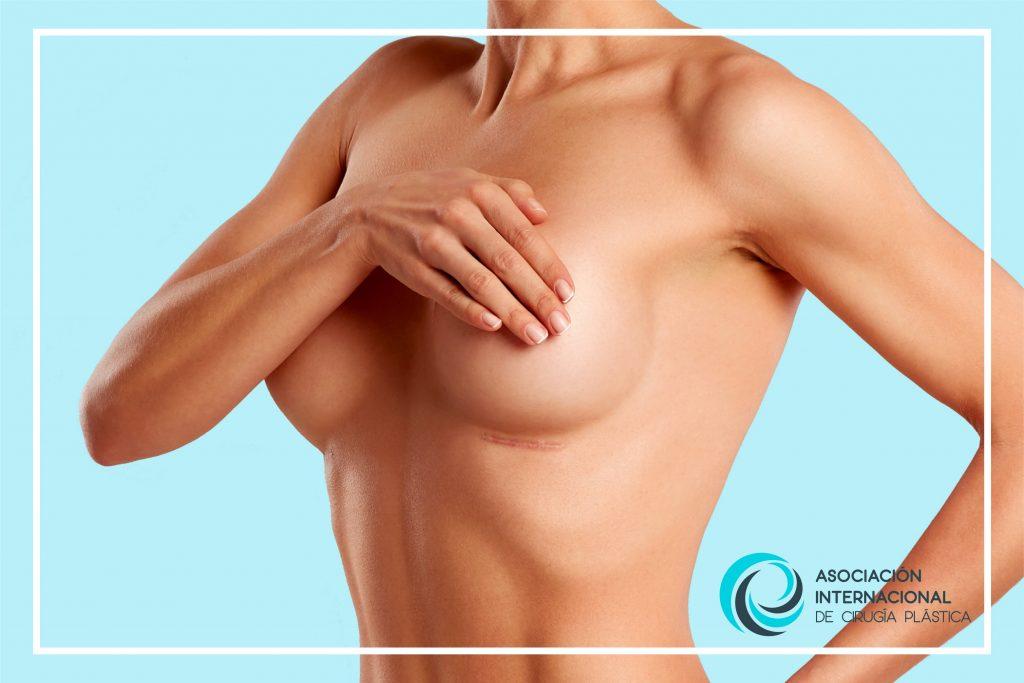 Mamoplastia Asociación Internacional de Cirugía Plástica