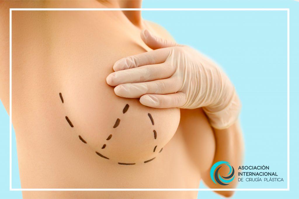 Mastopexia Asociación Internacional de Cirugía Plástica